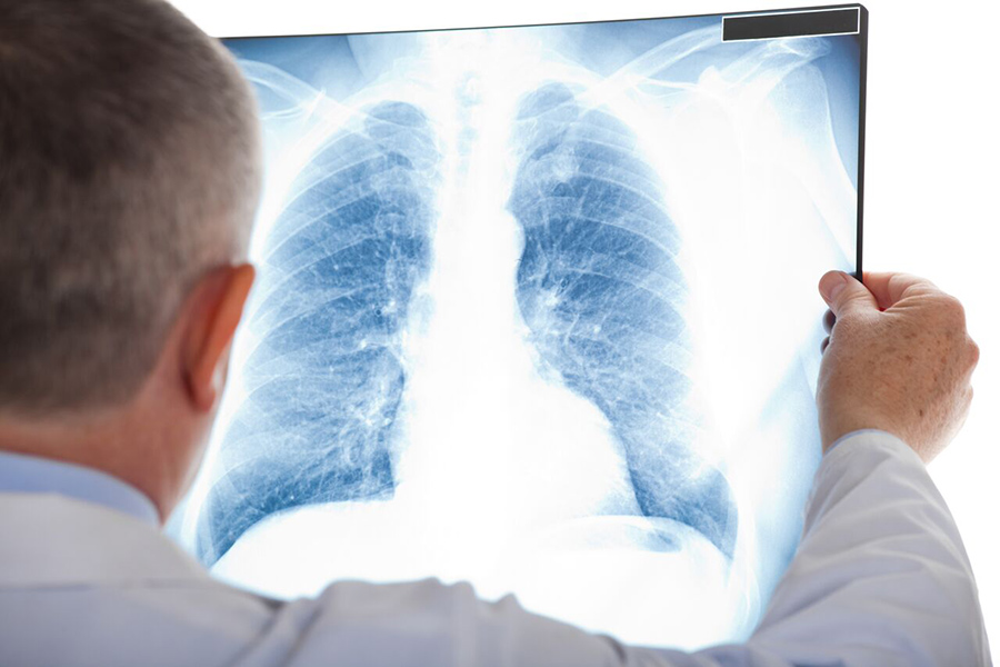 Lung Cancer Prevention And Detection